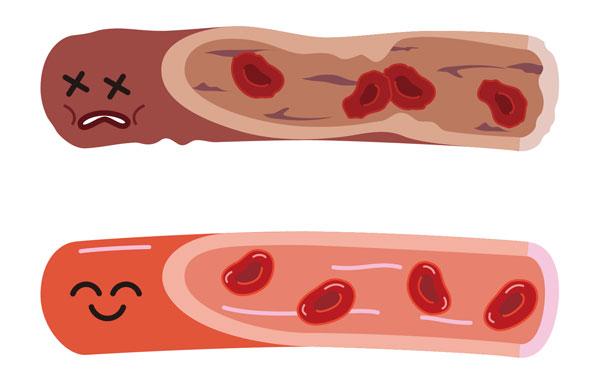 血液イメージ